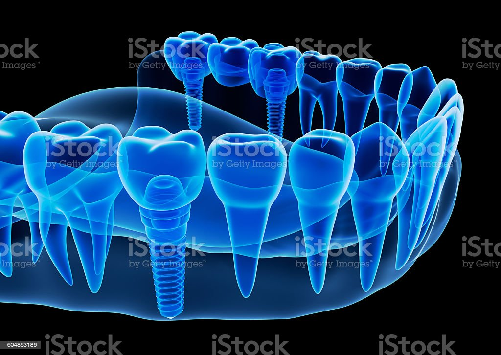 X-ray view of denture with implant , 3D illustration. stock photo