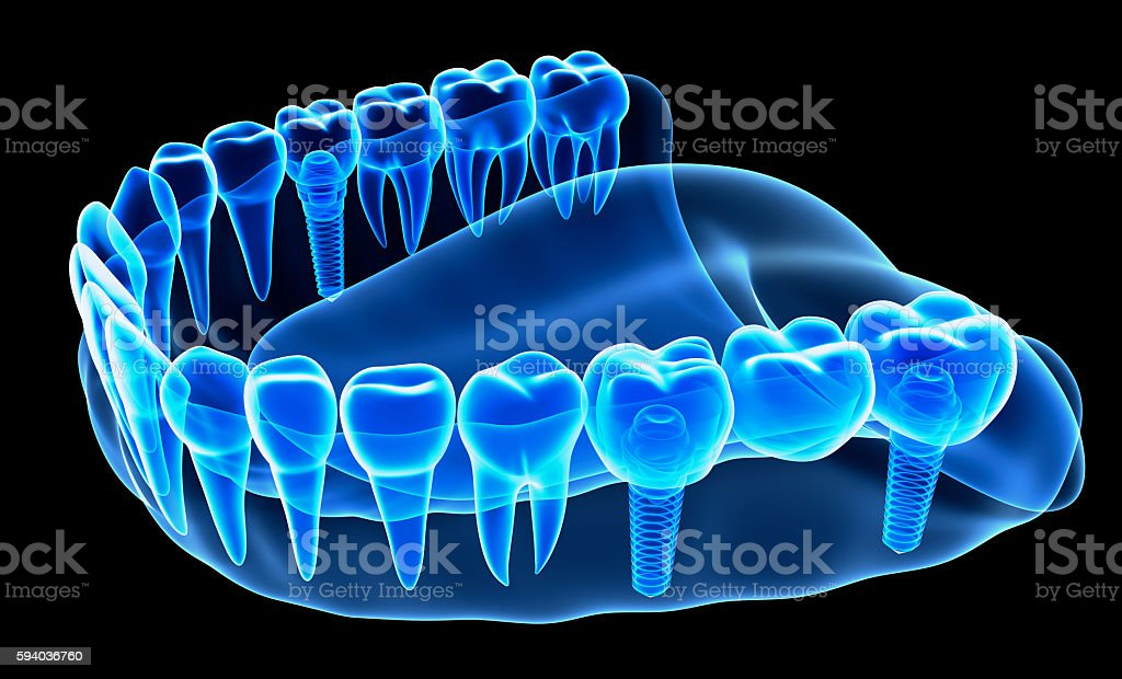 X-ray view of denture with implant stock photo