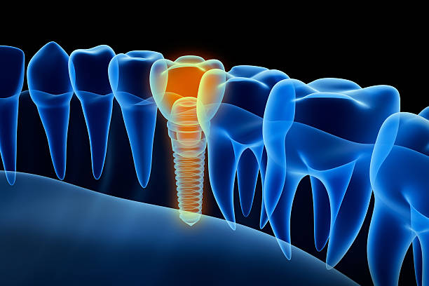 X-ray view of denture with implant.  Xray view. X-ray view of denture with implant.  Xray view. Medically accurate 3D illustration  implant stock pictures, royalty-free photos & images