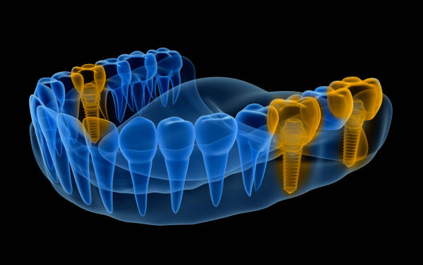 x-ray view of denture with implants .  xray view. medically accurate 3d illustration - dental implants stock photos and pictures