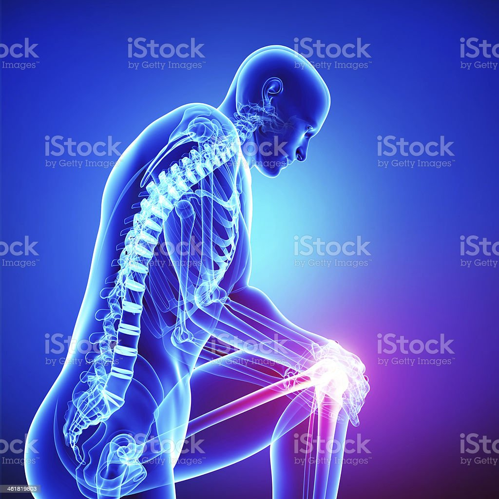 Xray Vision Of A Man With Pain In His Left Knee Stock Photo & More ...