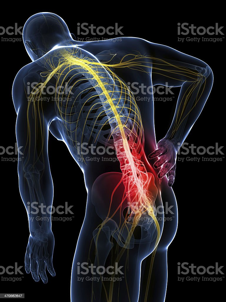 X-ray visualization image of man with acute lower back pain stock photo