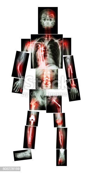 istock X-ray whole body and multiple fracture 505228159