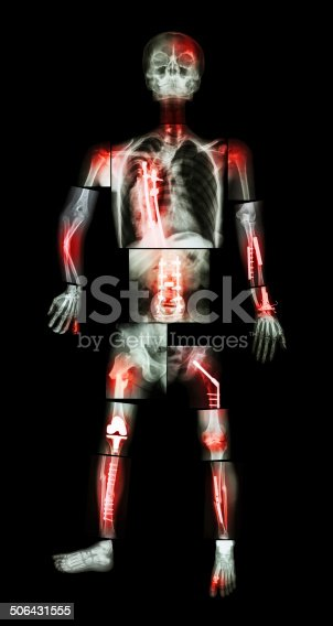 istock X-ray whole body and multiple fracture 506431555