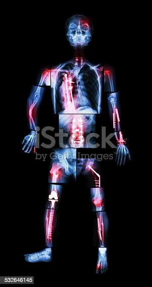 istock X-ray whole body and multiple fracture 532646145