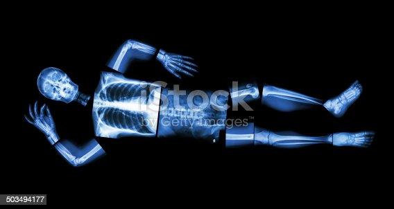 istock X-ray whole body and sleeping 503494177