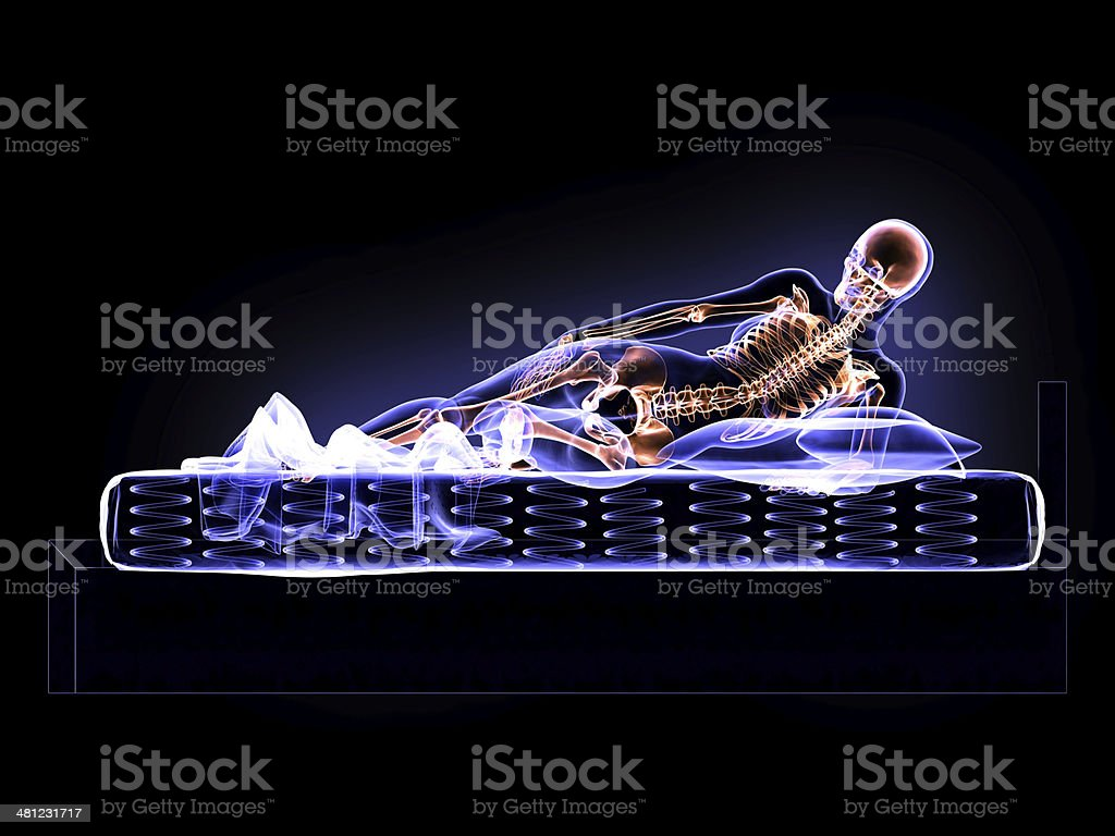X-Ray Woman and Bed stock photo