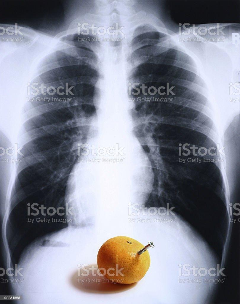 Xray/lung 2.jpg royalty-free stock photo