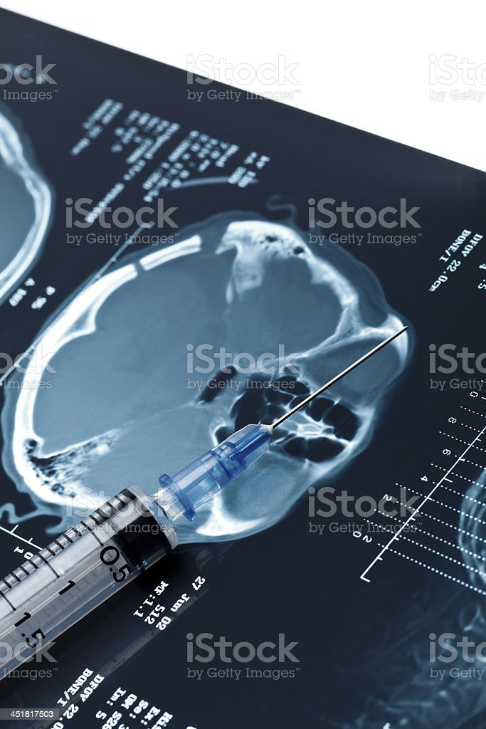 x-rays and syringes. stock photo