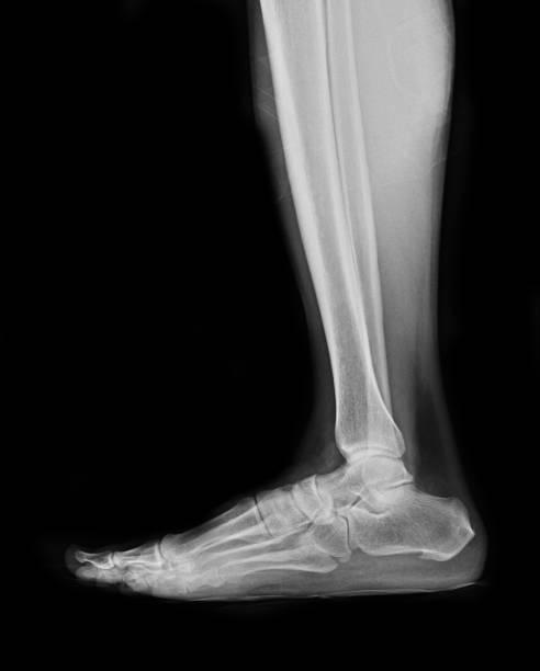 image de radiographies des patients fracture pied - mi jambe photos et images de collection