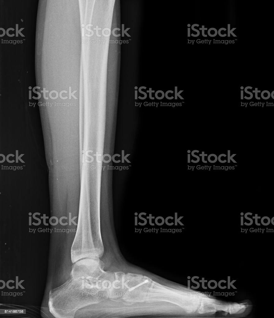 Röntgenbild Der Fuß Fraktur Patienten Stock-Fotografie und mehr ...
