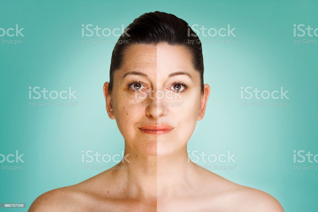 50 year old woman headshot before and after anti-aging program stock photo