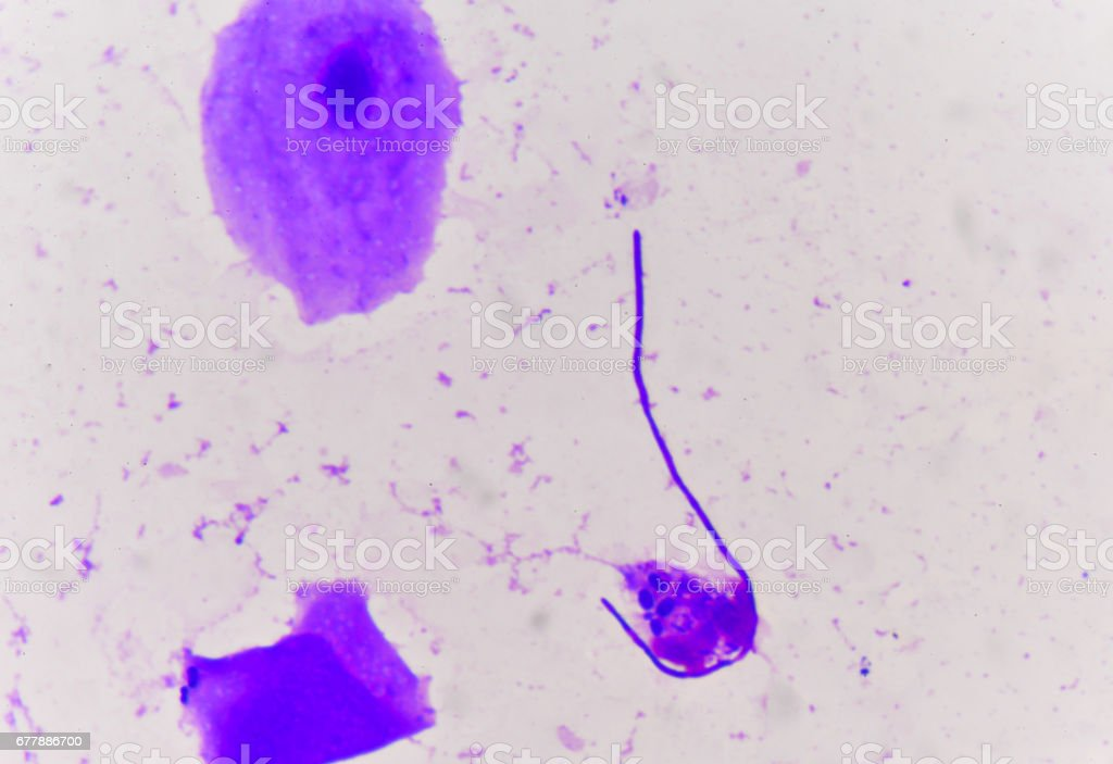Yeast cells with epithelial tissue in Gram stain method. stock photo