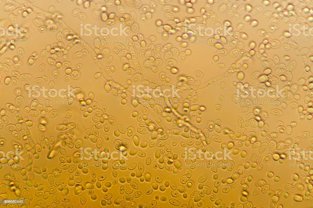 Yeast under the microscope. stock photo