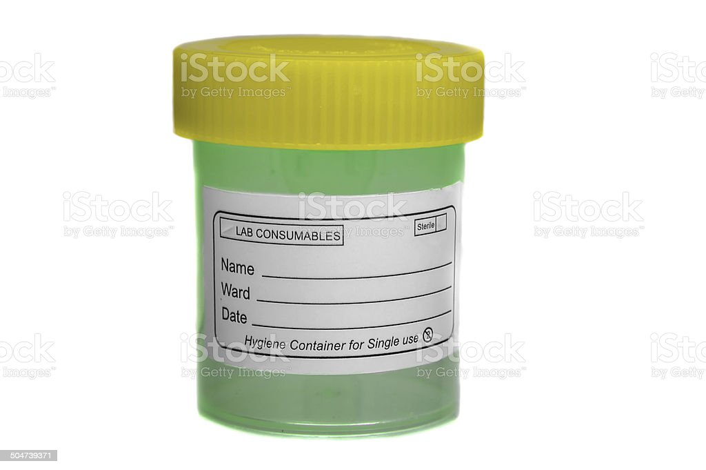 Yellow green specimen sample container royalty-free stock photo