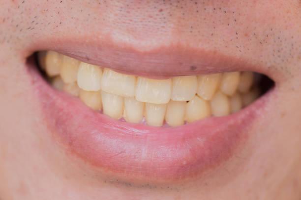 gele tanden in mannelijk uit de rook en koffie - dentine stockfoto's en -beelden