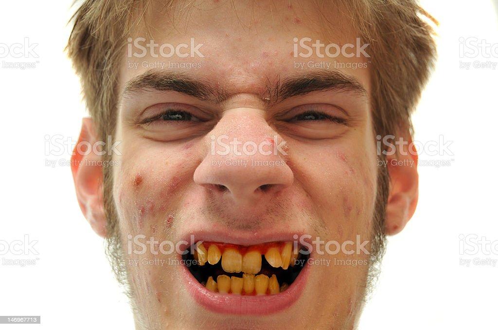 Yellow Teeth stock photo