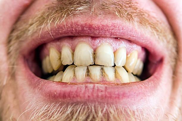 Yellow teeth plaque stock photo