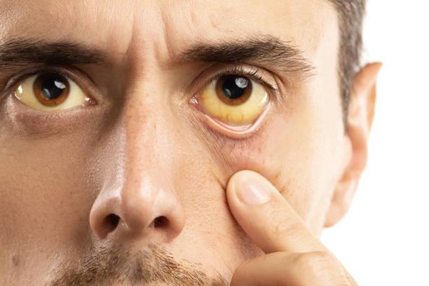 olhos amarelados é sinal de problemas de fígado, infecção viral ou outra doença - vesicula biliar - fotografias e filmes do acervo