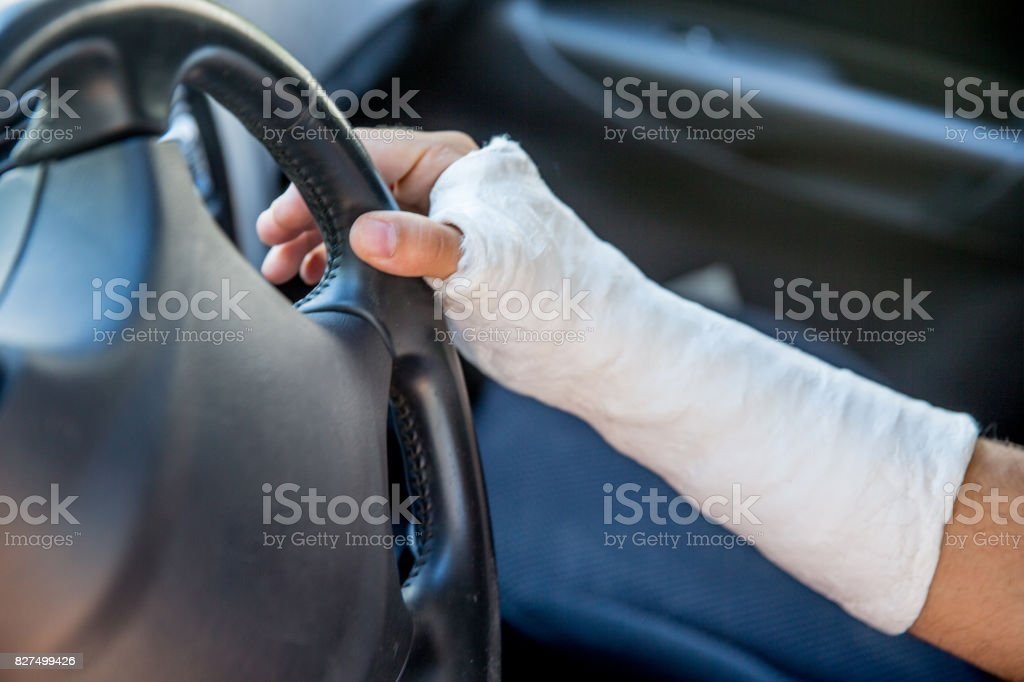 Young Adult Man Wearing Cast And Driving Car Stock Photo