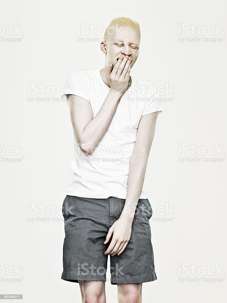 Young albino man yawning stock photo