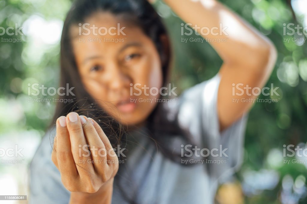 Young asian woman looking lost hair in hand . problem lost hair