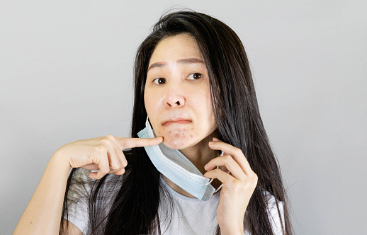 Young Asian woman wearing medical face mask and white t shirt point finger at pimple on chin. isolated on gray background,health care concept