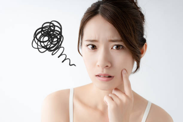 Young asian woman worrying about her skin. stock photo