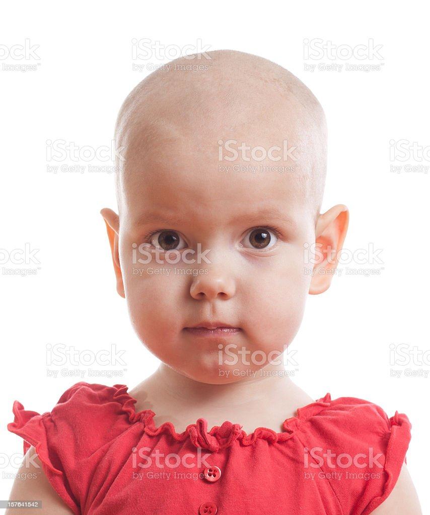 A young bald girl wearing a red dress stock photo