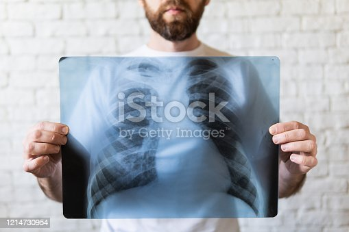 istock Young bearded man holding X-ray film of lungs in front of his chest 1214730954