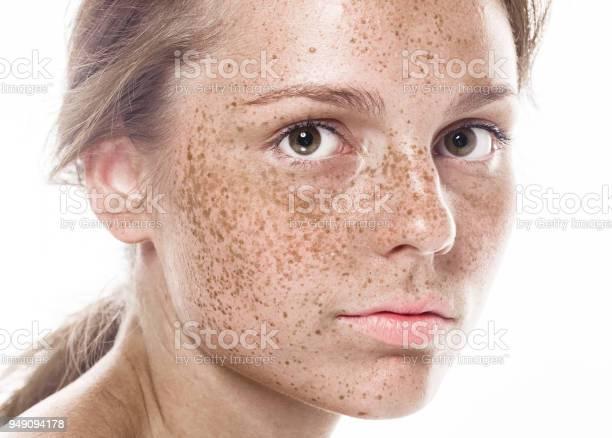 Junge Schöne Sommersprossen Frau Gesicht Portrait Mit Gesunder Haut Stockfoto und mehr Bilder von Atelier