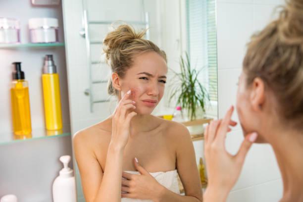 Belle jeune femme avec sèche sur la peau irritée. - Photo