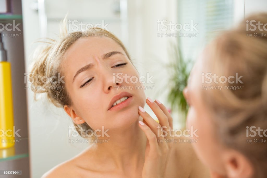 Young beautiful woman with dry irritated skin. stock photo