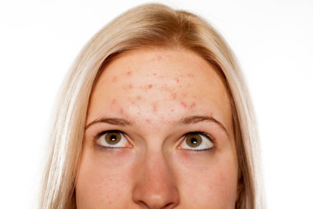 young blond with pimples on her forehead - acne stock photos and pictures