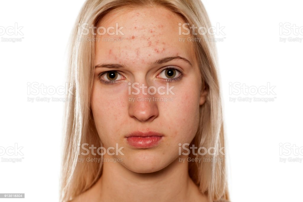 Young blonde with pimples on her forehead stock photo