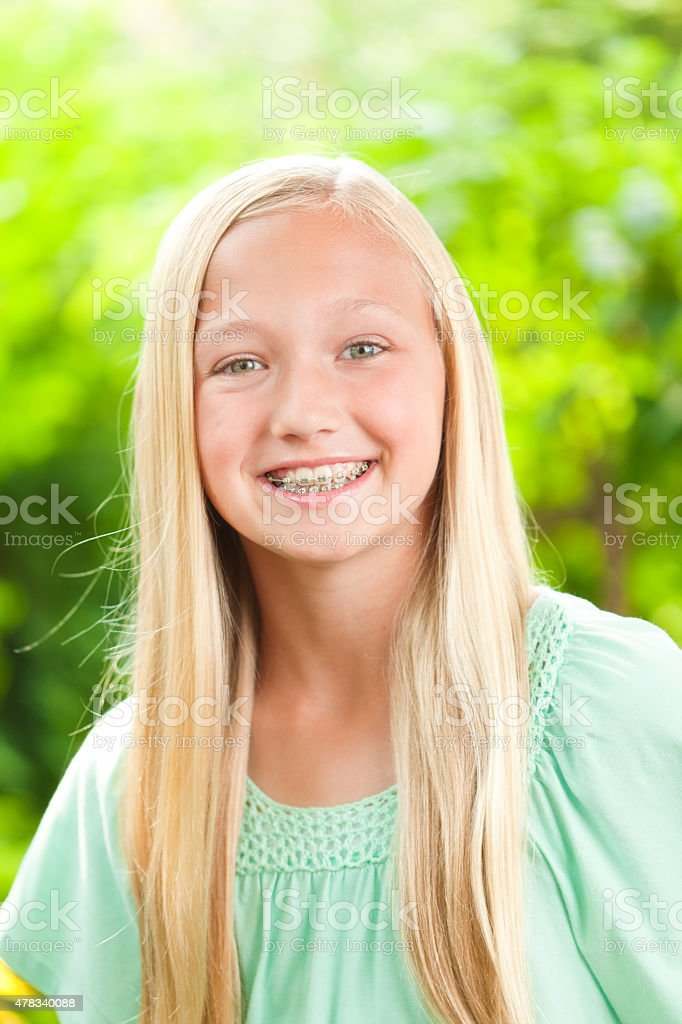 Girl Teen Teenager Transition Age 13 14 15 Years Brunette: Young Caucasian Teen Girl Portrait With Dental Teeth
