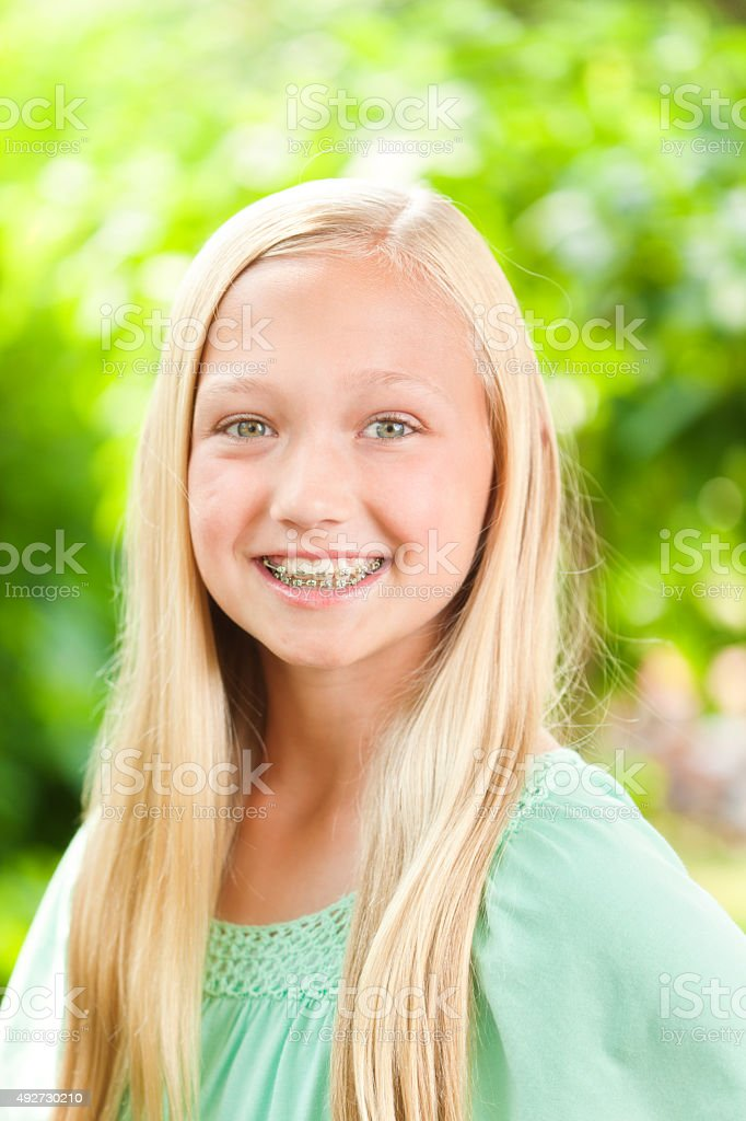 Young Caucasian Teen Girl Portrait with Dental Teeth Braces - Stock image .