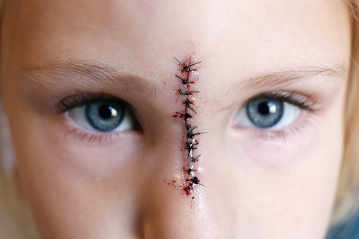 Close up on a young child's face and eyes, with stitches down the bridge of her nose from an injury.