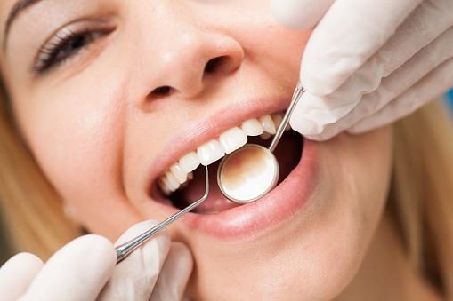 Young Confident Woman At Dentists Office Having Routine Checkup Stockfoto und mehr Bilder von Arbeiten