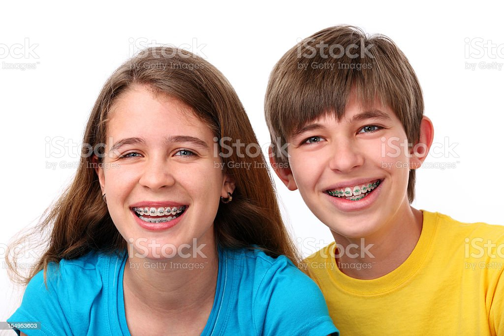 Menina e menino com Aparelho ortodôntico - foto de acervo