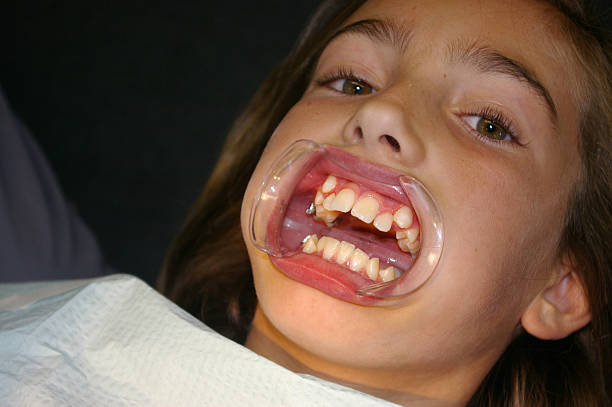 Pretty girl with crooked teeth