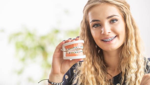A young girl with a dental braces holds a model of aligned teeth in her hand. stock photo