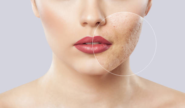 A young girl with a problem skin. Photo before and after treatment for acne. stock photo