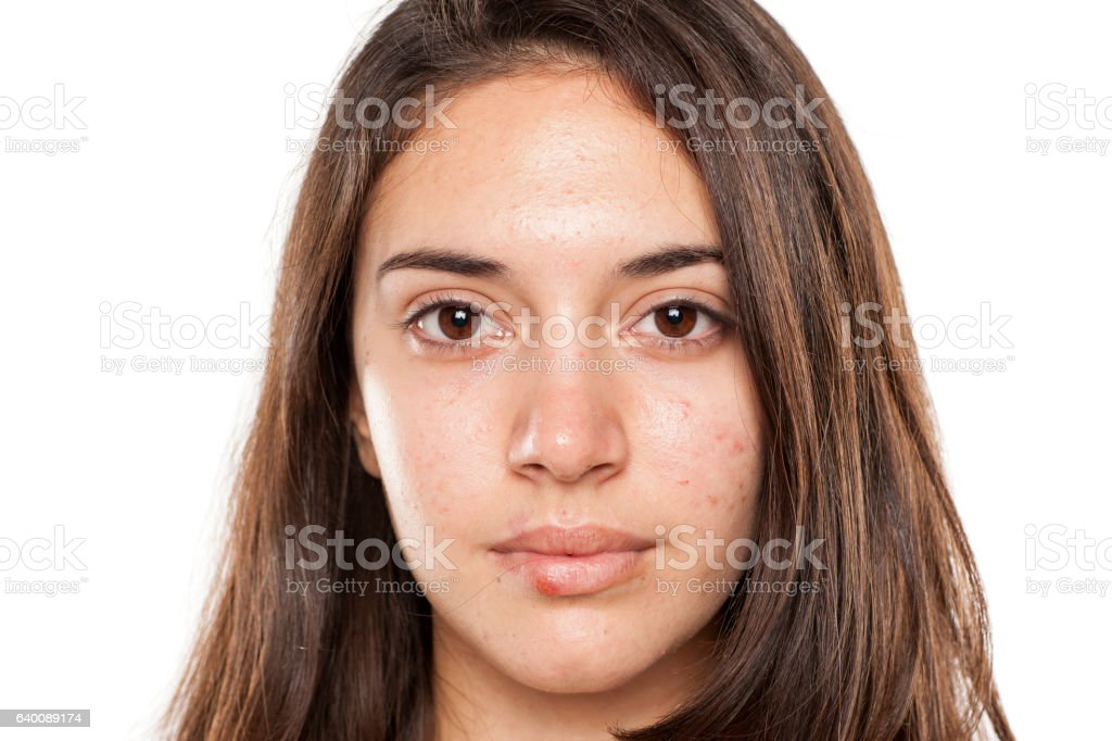 young girl with acne and herpes on the lips stock photo