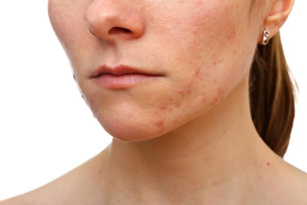Junges Mädchen mit Hautproblem – Foto