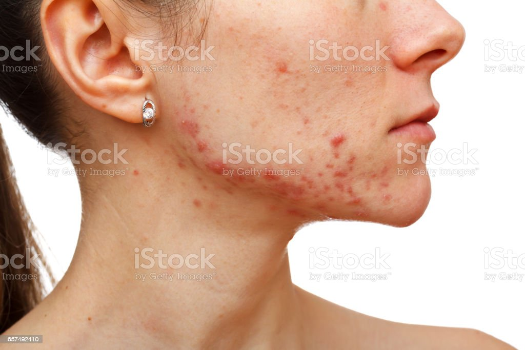 Young girl with skin problem stock photo