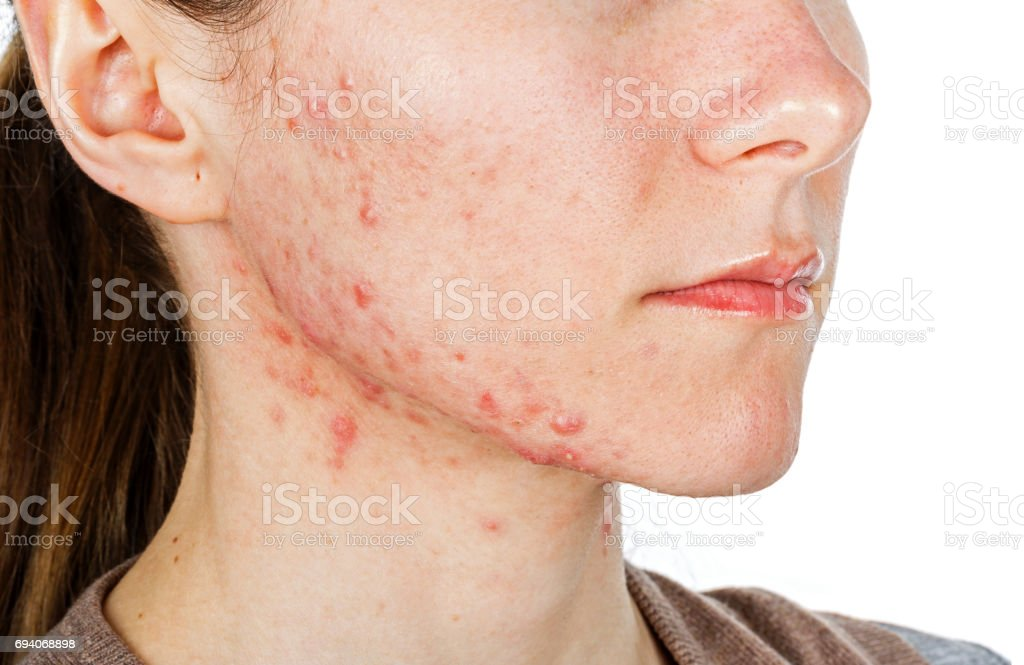 Young girl with skin problem - foto stock