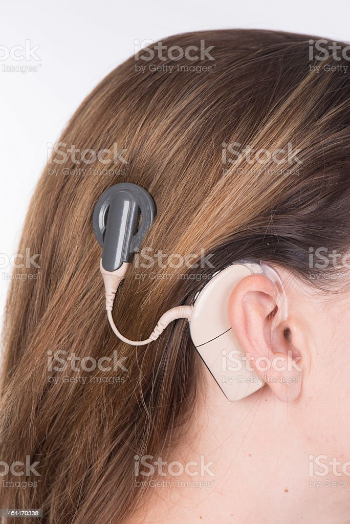 Young lady with cochlear implant stock photo