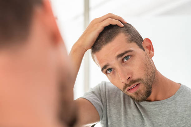 Young man checking hair in mirror Young unshaven man looking at mirror in bathroom at home. Handsome guy looking at his face in mirror, checking hair and hairline. Man in pijamas concerned with hair loss. human scalp stock pictures, royalty-free photos & images