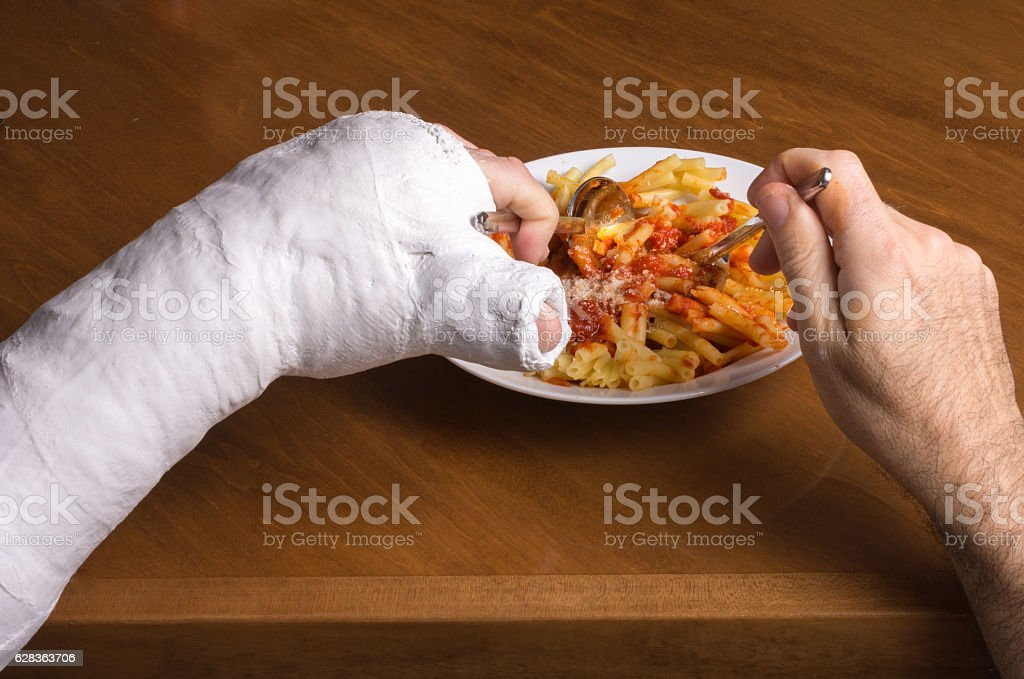 Young man in an arm cast eating pasta stock photo